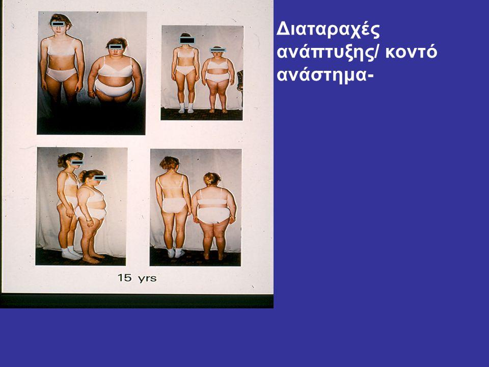 Διαταραχές ανάπτυξης/ κοντό ανάστημα-