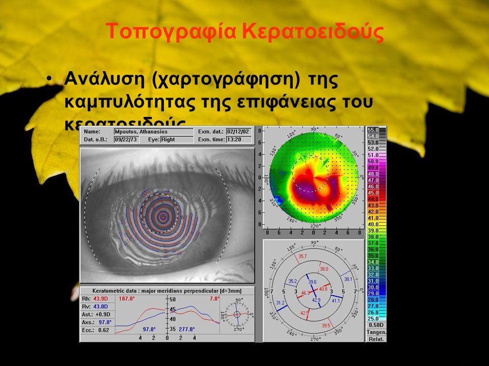 ΤΟΠΟΓΡΑΦΙΑ ΚΕΡΑΤΟΕΙΔΟΥΣ Χαρτογράφηση της διαθλαστικής ισχύος και καμπυλότητας του κερατοειδούς σε κάθε του σημείοΤΟΠΟΓΡΑΦΙΑ ΚΕΡΑΤΟΕΙΔΟΥΣ - Χαρτογράφηση της διαθλαστικής ισχύος και καμπυλότητας του κερατοειδούς σε κάθε του σημείο - Προβολή ομόκεντρων κύκλων (με βάση τον δίσκο Placido) στον κερατοειδή, λήψη κερατοειδικής εικόνας με ψηφιακή κάμερα και ανάλυση από υπολογιστή με την βοήθεια ειδικών αλγορίθμων - Εναλλακτικά προβολή λεπτών φωτεινών δεσμών ή ολογραφικά συστήματα.