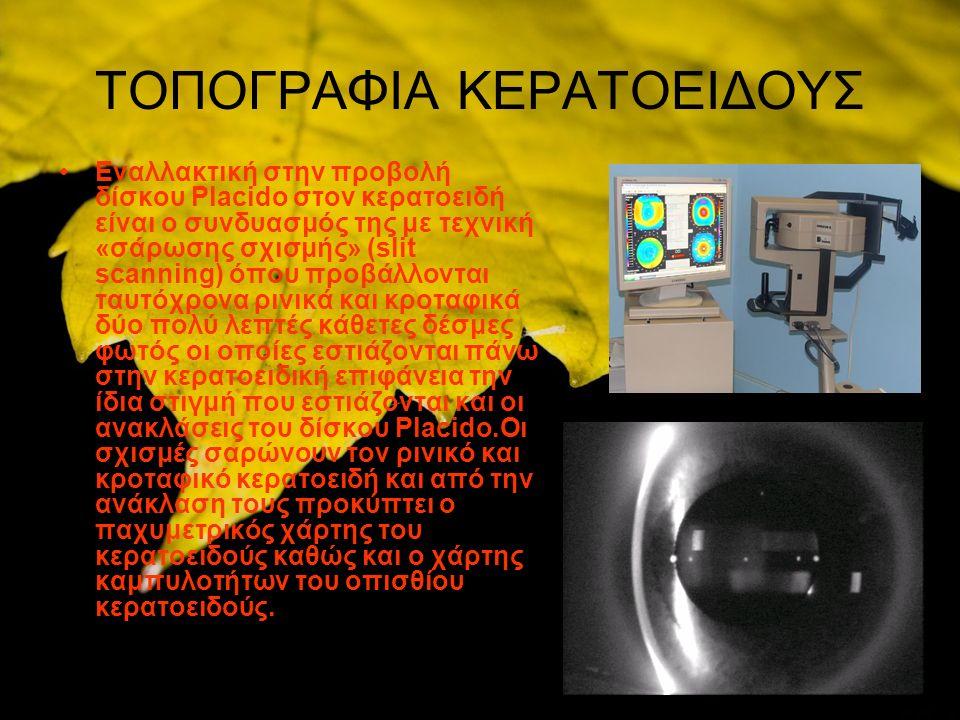 ΤΟΠΟΓΡΑΦΙΑ ΚΕΡΑΤΟΕΙΔΟΥΣ Εναλλακτική στην προβολή δίσκου Placido στον κερατοειδή είναι ο συνδυασμός της με τεχνική «σάρωσης σχισμής» (slit scanning) όπου προβάλλονται ταυτόχρονα ρινικά και κροταφικά δύο πολύ λεπτές κάθετες δέσμες φωτός οι οποίες εστιάζονται πάνω στην κερατοειδική επιφάνεια την ίδια στιγμή που εστιάζονται και οι ανακλάσεις του δίσκου Placido.Οι σχισμές σαρώνουν τον ρινικό και κροταφικό κερατοειδή και από την ανάκλαση τους προκύπτει ο παχυμετρικός χάρτης του κερατοειδούς καθώς και ο χάρτης καμπυλοτήτων του οπισθίου κερατοειδούς.