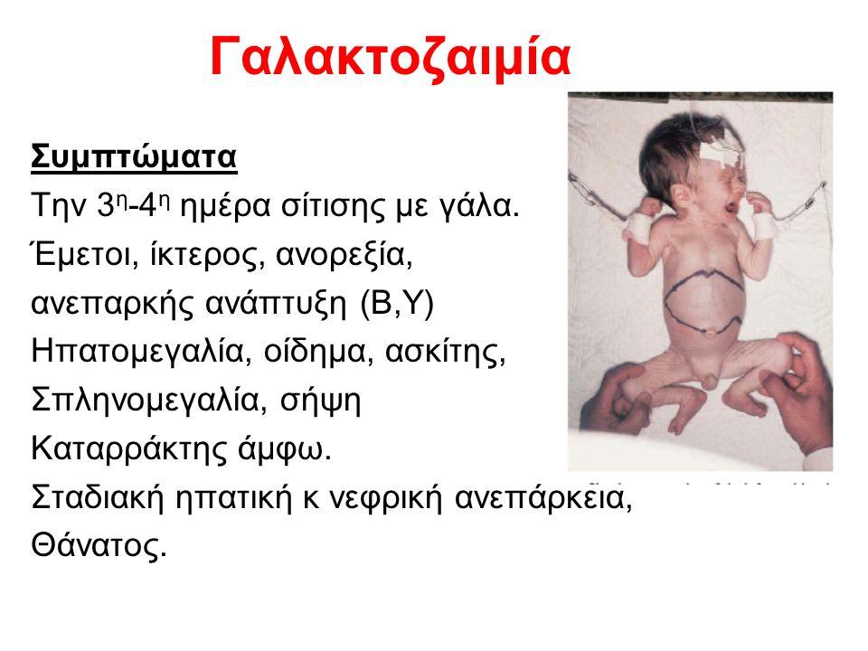 Γαλακτοζαιμία Συμπτώματα Την 3 η -4 η ημέρα σίτισης με γάλα.