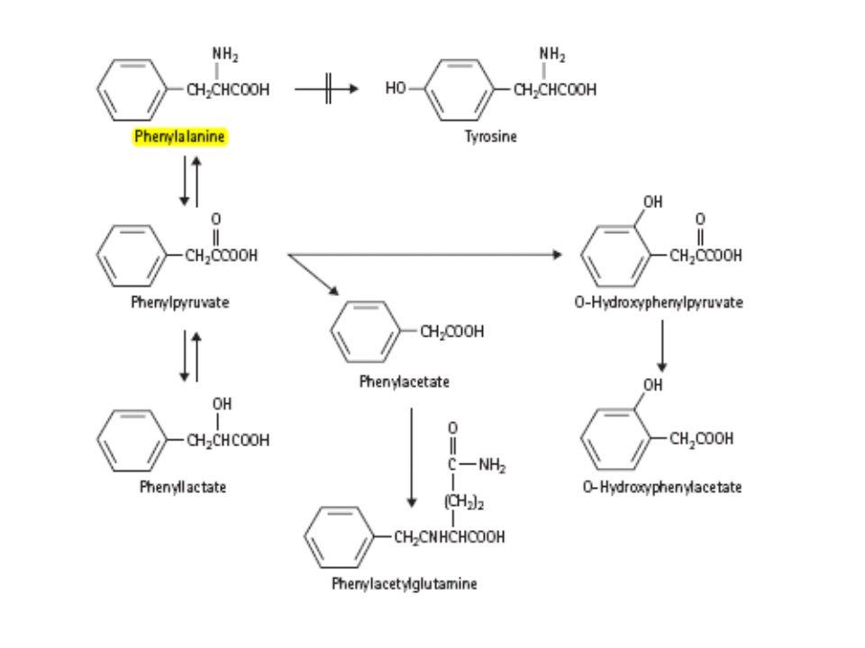 ΦΑΙΝΥΛΚΕΤΟΝΟΥΡΙΑ Κλασσική πλήρη ή σχεδόν πλήρη έλλειψη της υδροξυλάσης της φαινυλαλανίνης.