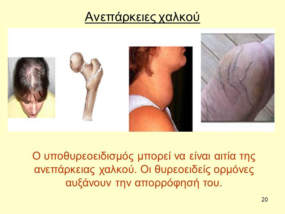20 Ανεπάρκειες χαλκού Ο υποθυρεοειδισμός μπορεί να είναι αιτία της ανεπάρκειας χαλκού. Οι θυρεοειδείς ορμόνες αυξάνουν την απορρόφησή του.