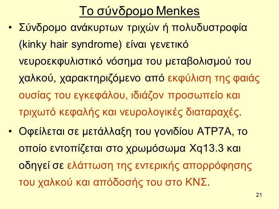 21 Το σύνδρομο Menkes Σύνδρομο ανάκυρτων τριχών ή πολυδυστροφία (kinky hair syndrome) είναι γενετικό νευροεκφυλιστικό νόσημα του μεταβολισμού του χαλκού, χαρακτηριζόμενο από εκφύλιση της φαιάς ουσίας του εγκεφάλου, ιδιάζον προσωπείο και τριχωτό κεφαλής και νευρολογικές διαταραχές.