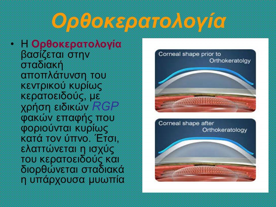 Ορθοκερατολογία Η Ορθοκερατολογία βασίζεται στην σταδιακή αποπλάτυνση του κεντρικού κυρίως κερατοειδούς, με χρήση ειδικών RGP φακών επαφής που φοριούν