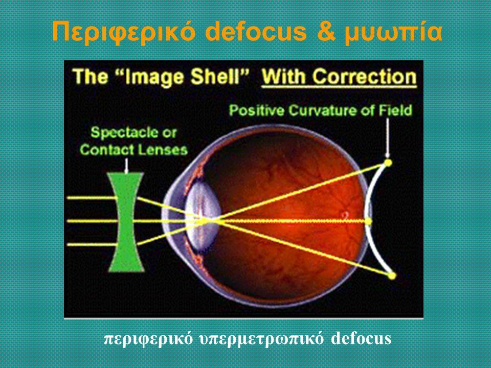 Περιφερικό defocus & μυωπία περιφερικό υπερμετρωπικό defocus