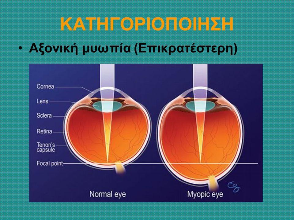 ΚΑΤΗΓΟΡΙΟΠΟΙΗΣΗ Αξονική μυωπία (Επικρατέστερη)