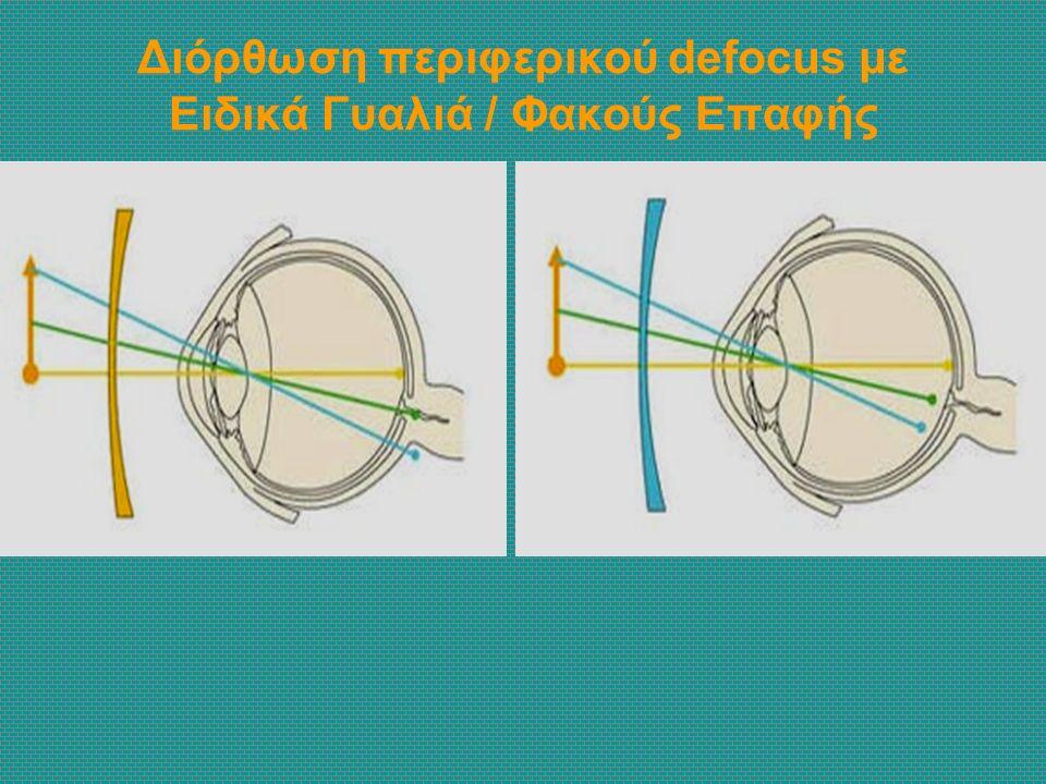 Διόρθωση περιφερικού defocus με Ειδικά Γυαλιά / Φακούς Επαφής