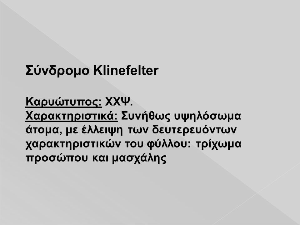 Σύνδρομο Klinefelter Καρυώτυπος: ΧΧΨ.