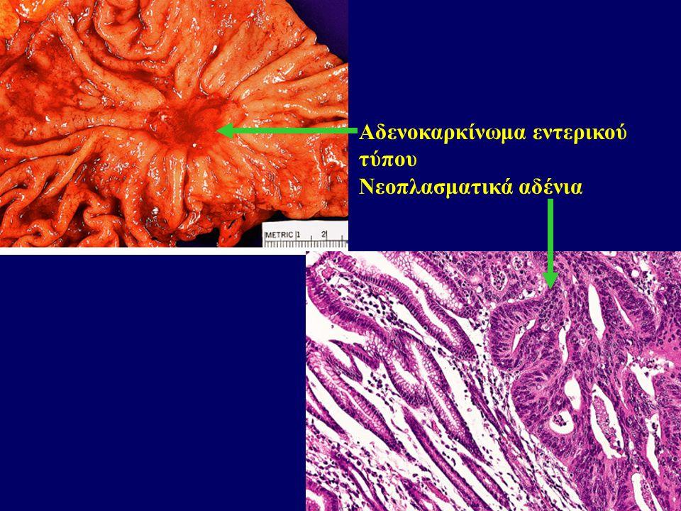 Νεοπλασματικά αδένια