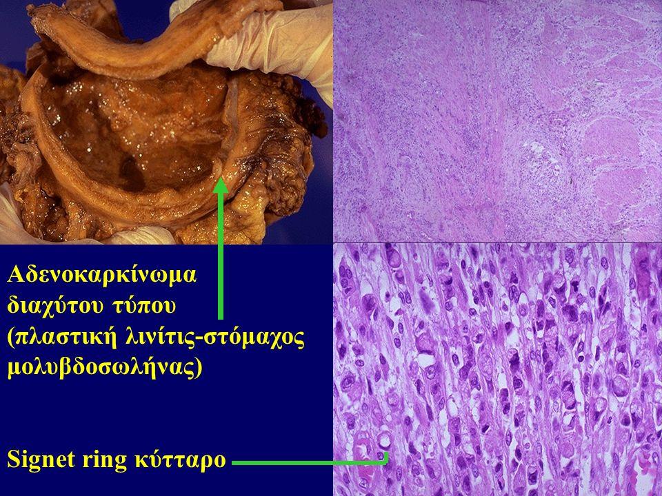 Αδενοκαρκίνωμα διαχύτου τύπου (πλαστική λινίτις-στόμαχος μολυβδοσωλήνας) Signet ring κύτταρο