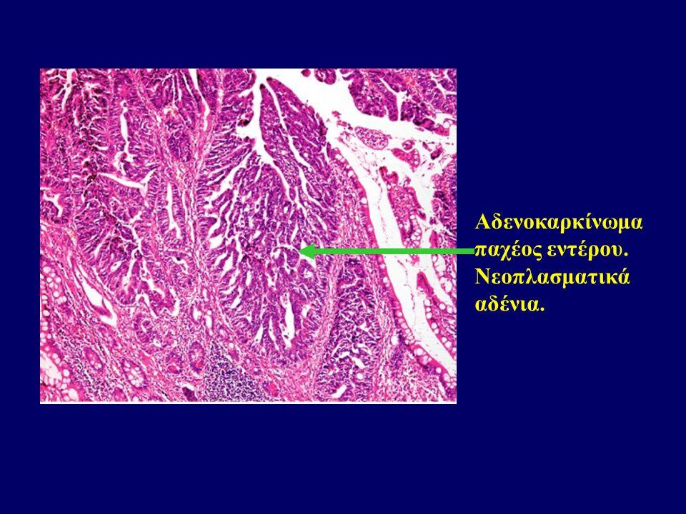Αδενοκαρκίνωμα παχέος εντέρου. Νεοπλασματικά αδένια.