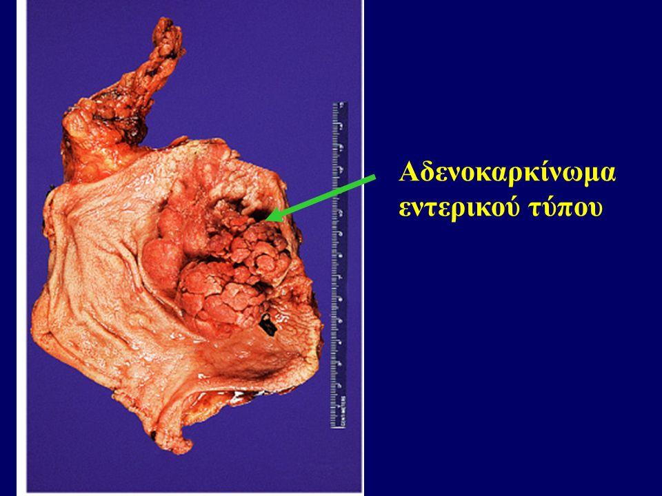 Αδενοκαρκίνωμα εντερικού τύπου