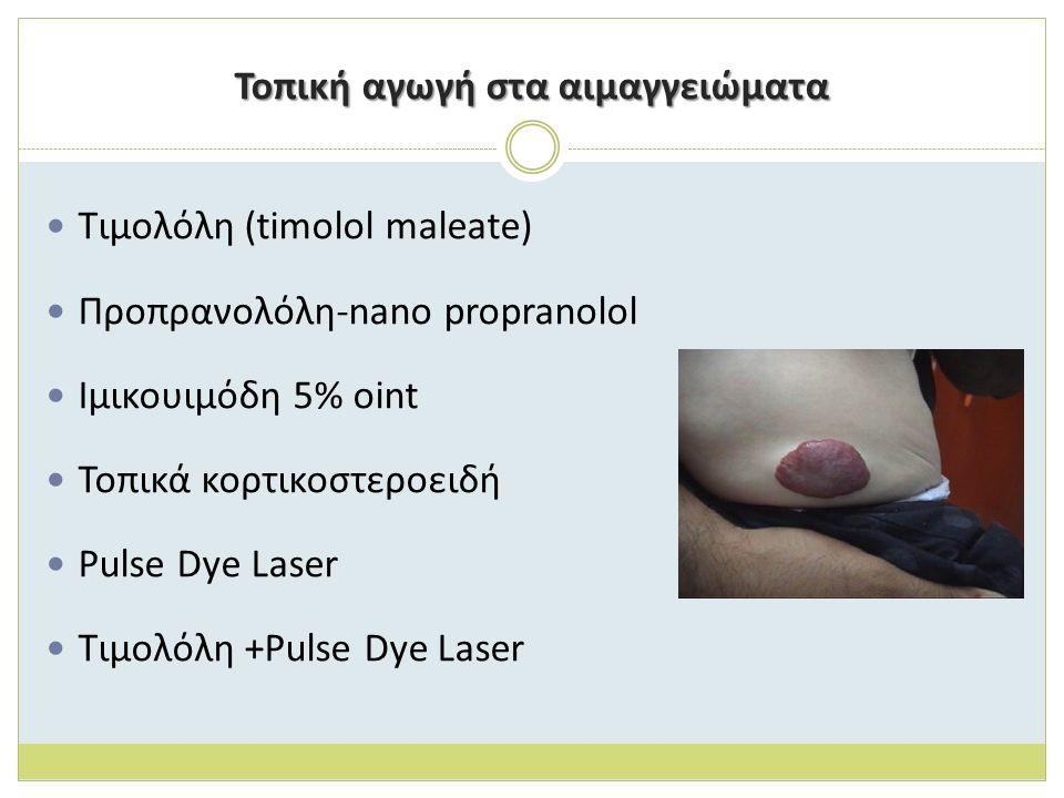 Τοπική αγωγή στα αιμαγγειώματα Τιμολόλη (timolol maleate) Προπρανολόλη-nano propranolol Ιμικουιμόδη 5% oint Τοπικά κορτικοστεροειδή Pulse Dye Laser Τιμολόλη +Pulse Dye Laser