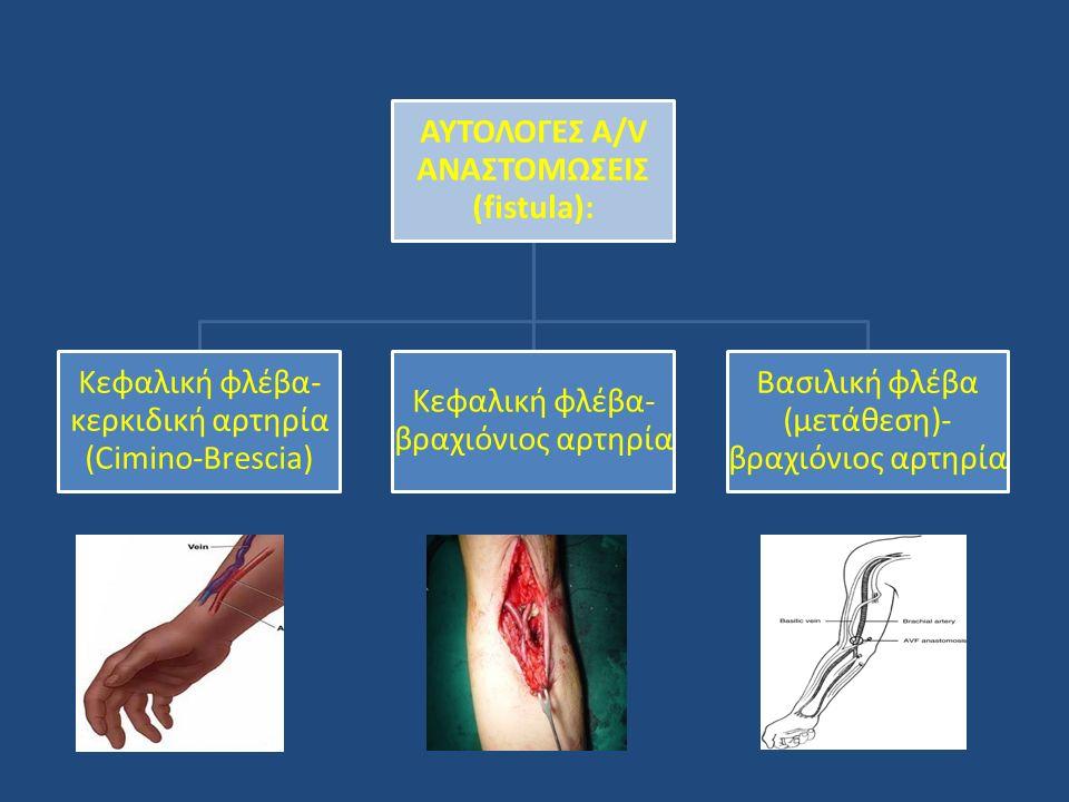 ΑΥΤΟΛΟΓΕΣ A/V ΑΝΑΣΤΟΜΩΣΕΙΣ (fistula): Κεφαλική φλέβα- κερκιδική αρτηρία (Cimino-Brescia) Κεφαλική φλέβα- βραχιόνιος αρτηρία Βασιλική φλέβα (μετάθεση)-