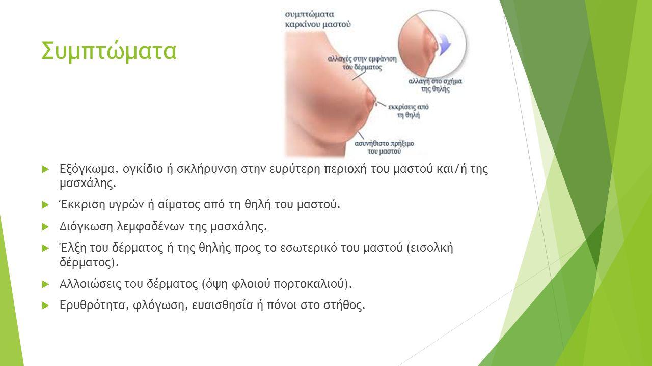 Συμπτώματα  Εξόγκωμα, ογκίδιο ή σκλήρυνση στην ευρύτερη περιοχή του μαστού και/ή της μασχάλης.