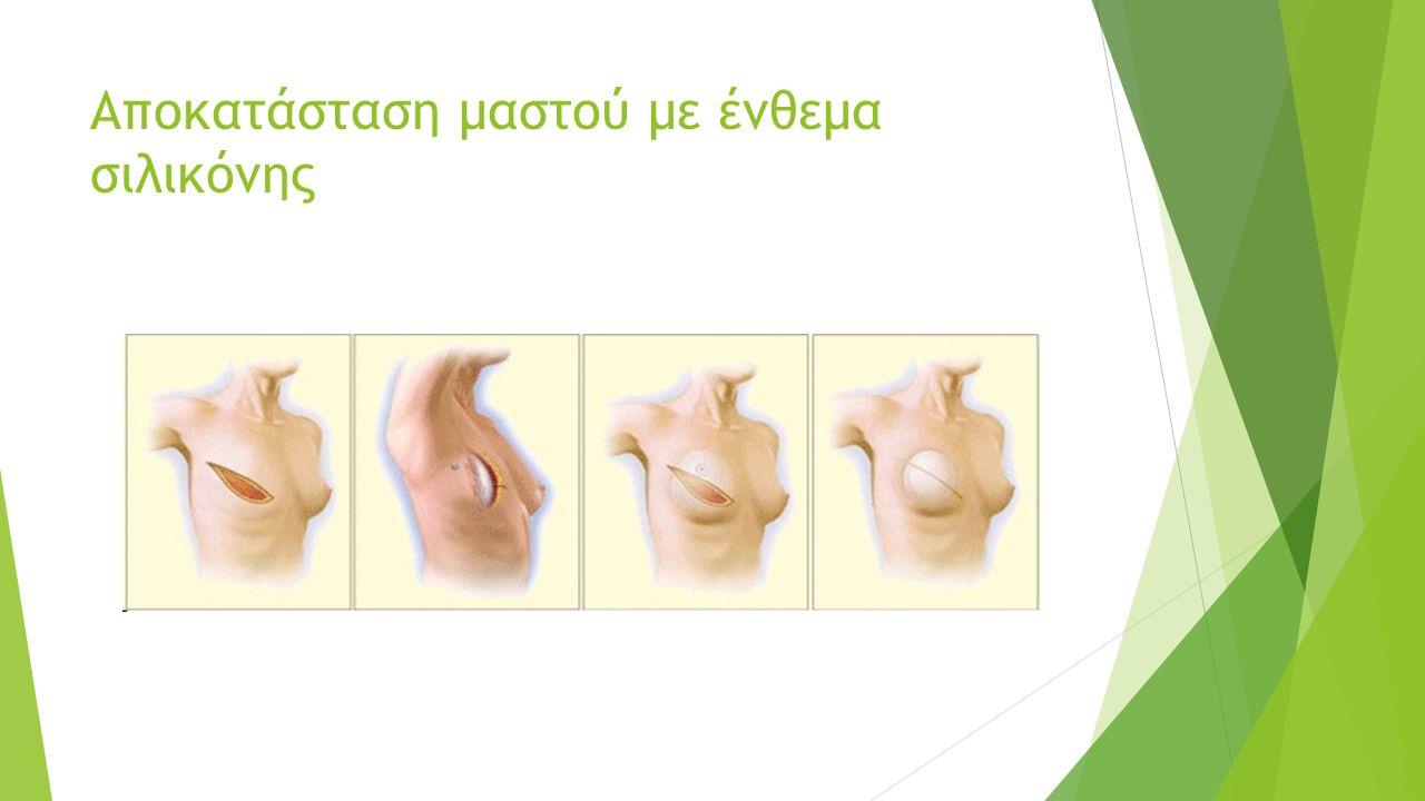 Αποκατάσταση μαστού με ένθεμα σιλικόνης
