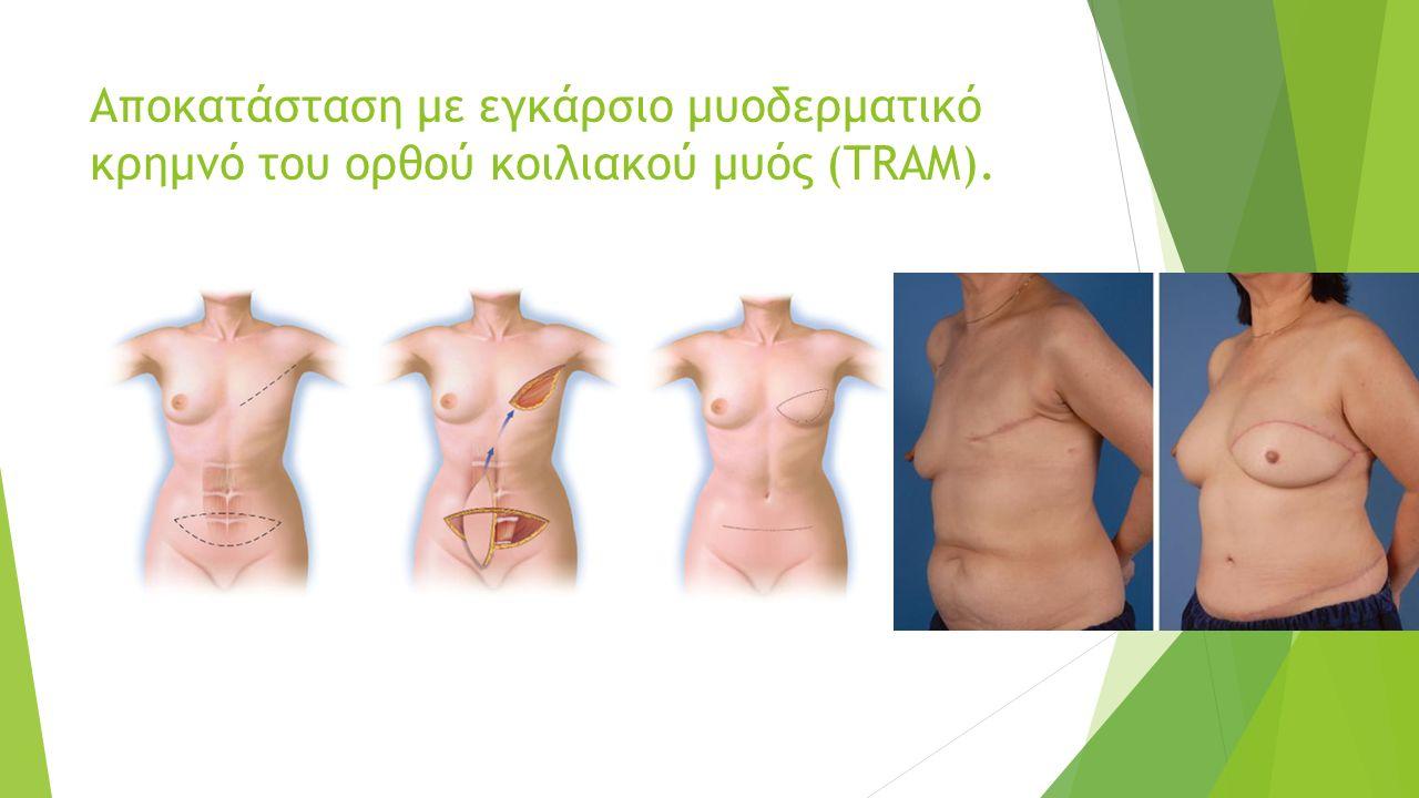 Αποκατάσταση με εγκάρσιο μυοδερματικό κρημνό του ορθού κοιλιακού μυός (TRAM).