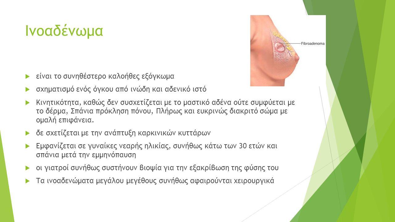 Ινοαδένωμα  είναι το συνηθέστερο καλοήθες εξόγκωμα  σχηματισμό ενός όγκου από ινώδη και αδενικό ιστό  Κινητικότητα, καθώς δεν συσχετίζεται με το μαστικό αδένα ούτε συμφύεται με το δέρμα, Σπάνια πρόκληση πόνου, Πλήρως και ευκρινώς διακριτό σώμα με ομαλή επιφάνεια.
