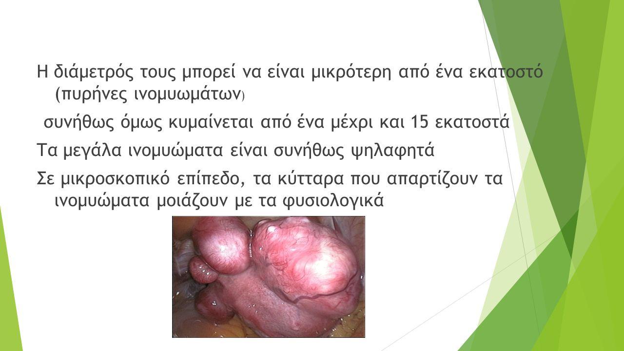 Συμπτώματα Τα ινομυώματα πριν την ανάπτυξή τους, μπορεί να μην προκαλούν συμπτώματα.