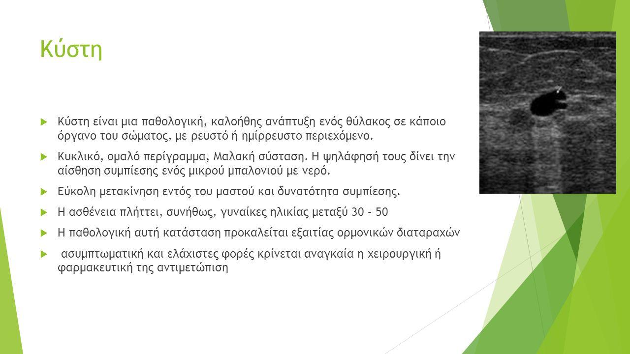 Κύστη  Κύστη είναι μια παθολογική, καλοήθης ανάπτυξη ενός θύλακος σε κάποιο όργανο του σώματος, με ρευστό ή ημίρρευστο περιεχόμενο.
