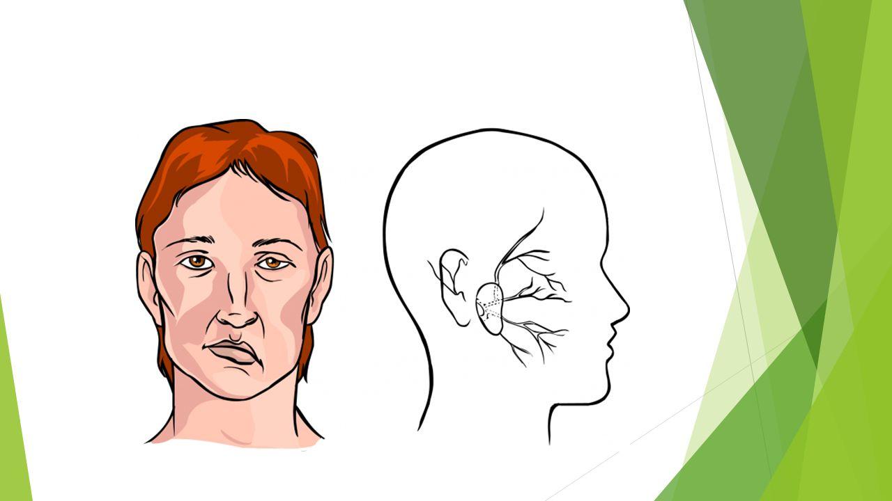 ΘΕΡΑΠΕΙΑ  Το εγκεφαλικό επεισόδιο αποτελεί ιατρικό επείγον.