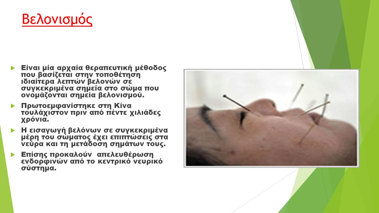 Βελονισμός  Είναι μία αρχαία θεραπευτική μέθοδος που βασίζεται στην τοποθέτηση ιδιαίτερα λεπτών βελονών σε συγκεκριμένα σημεία στο σώμα που ονομάζονται σημεία βελονισμού.