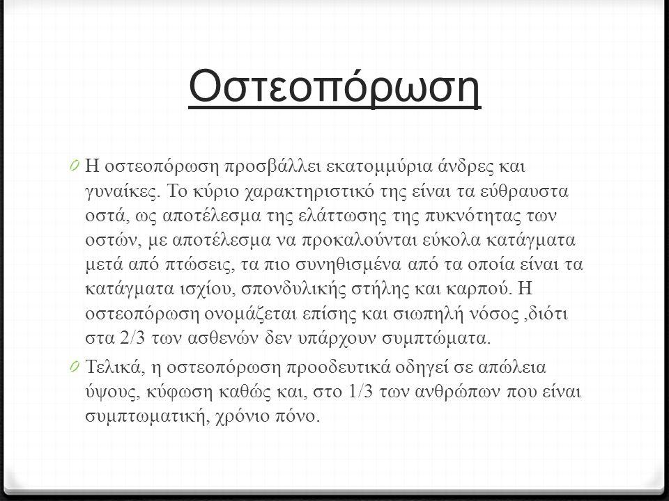 Οστεοπόρωση 0 Η οστεοπόρωση προσβάλλει εκατομμύρια άνδρες και γυναίκες. Το κύριο χαρακτηριστικό της είναι τα εύθραυστα οστά, ως αποτέλεσμα της ελάττωσ