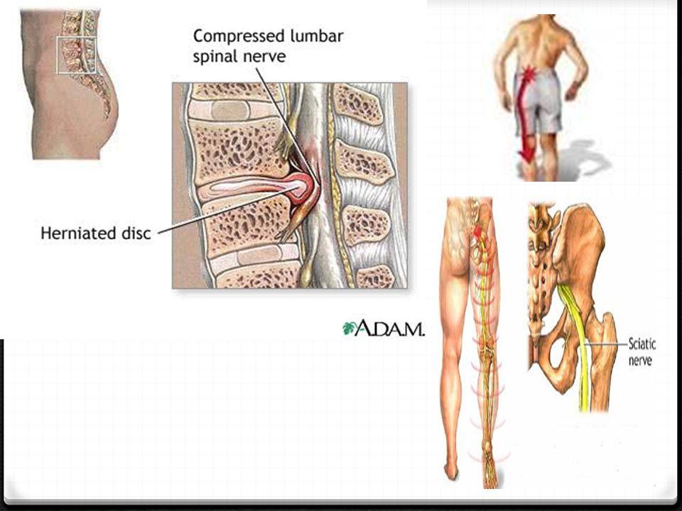 ΣΥΜΠΤΩΜΑΤΑ 0 Τα συμπτώματα της κήλης δίσκου είναι πόνος ή αδυναμία του ποδιού: 0 Οξύς ή χρόνιος πόνος στην μέση, ο οποίος χειροτερεύει με το βήχα η το φτέρνισμα.