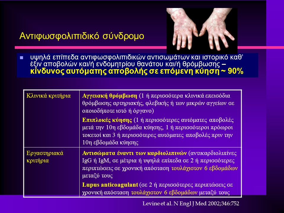 Αντιφωσφολιπιδικό σύνδρομο n υψηλά επίπεδα αντιφωσφολιπιδικών αντισωμάτων και ιστορικό καθ' έξιν αποβολών και/ή ενδομητρίου θανάτου και/ή θρόμβωσης – κίνδυνος αυτόματης αποβολής σε επόμενη κύηση ~ 90% Κλινικά κριτήριαΑγγειακή θρόμβωση (1 ή περισσότερα κλινικά επεισόδια θρόμβωσης αρτηριακής, φλεβικής ή των μικρών αγγείων σε οποιοδήποτε ιστό ή όργανο) Επιπλοκές κύησης (1 ή περισσότερες αυτόματες αποβολές μετά την 10η εβδομάδα κύησης, 1 ή περισσότεροι πρόωροι τοκετοί και 3 ή περισσότερες αυτόματες αποβολές πριν την 10η εβδομάδα κύησης Εργαστηριακά κριτήρια Αντισώματα έναντι των καρδιολιπινών (αντικαρδιολιπίνες IgG ή IgM, σε μέτρια ή υψηλά επίπεδα σε 2 ή περισσότερες περιπτώσεις σε χρονική απόσταση τουλάχιστον 6 εβδομάδων μεταξύ τους Lupus anticoagulant (σε 2 ή περισσότερες περιπτώσεις σε χρονική απόσταση τουλάχιστον 6 εβδομάδων μεταξύ τους Levine et al.