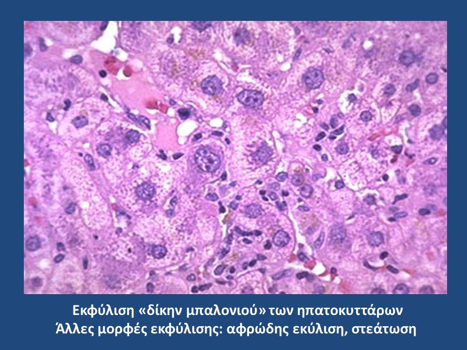 Εκφύλιση «δίκην μπαλονιού» των ηπατοκυττάρων Άλλες μορφές εκφύλισης: αφρώδης εκύλιση, στεάτωση
