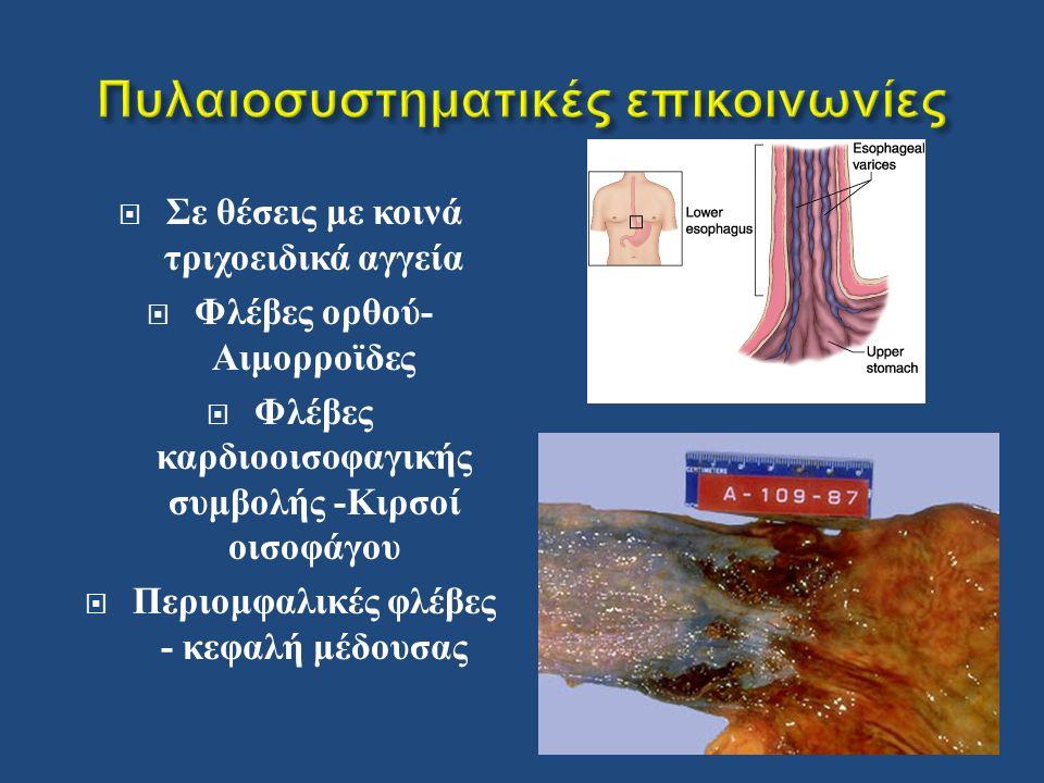  Σε θέσεις με κοινά τριχοειδικά αγγεία  Φλέβες ορθού - Αιμορροϊδες  Φλέβες καρδιοοισοφαγικής συμβολής - Κιρσοί οισοφάγου  Περιομφαλικές φλέβες - κεφαλή μέδουσας