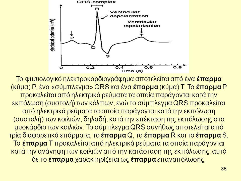 35 Το φυσιολογικό ηλεκτροκαρδιογράφημα αποτελείται από ένα έπαρμα (κύμα) Ρ, ένα «σύμπλεγμα» QRS και ένα έπαρμα (κύμα) Τ.