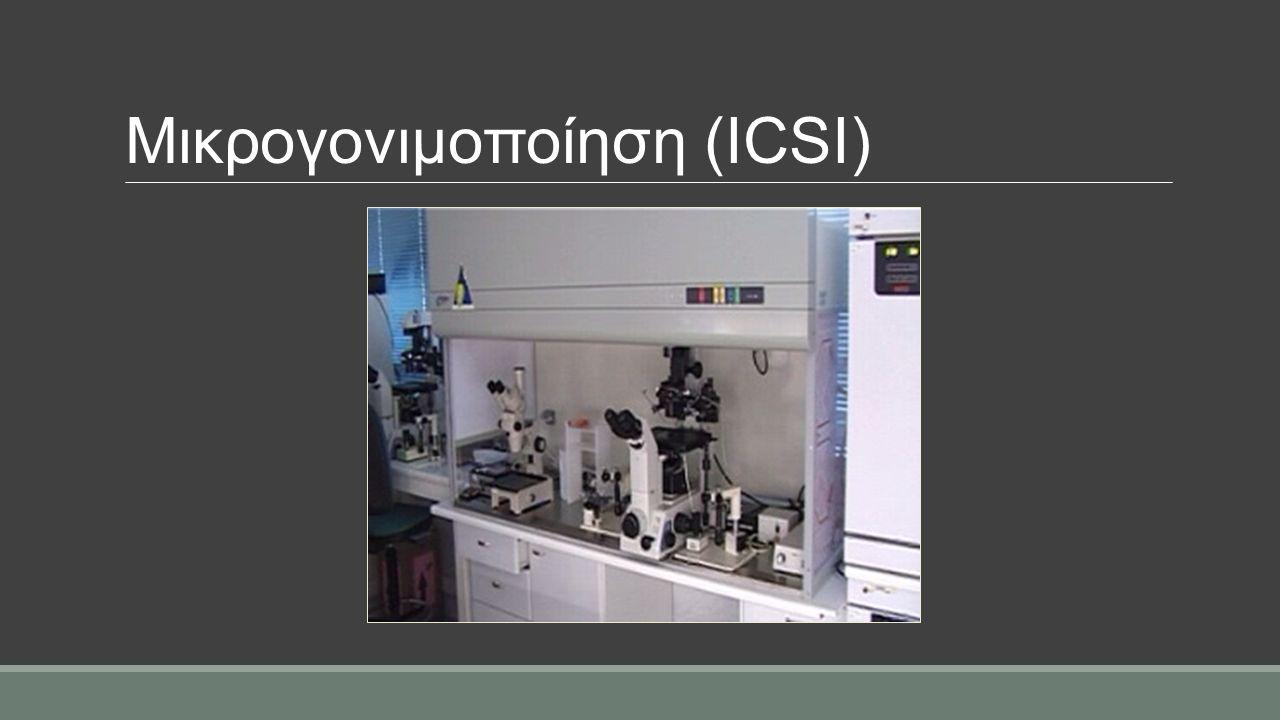 Μικρογονιμοποίηση (ICSI)
