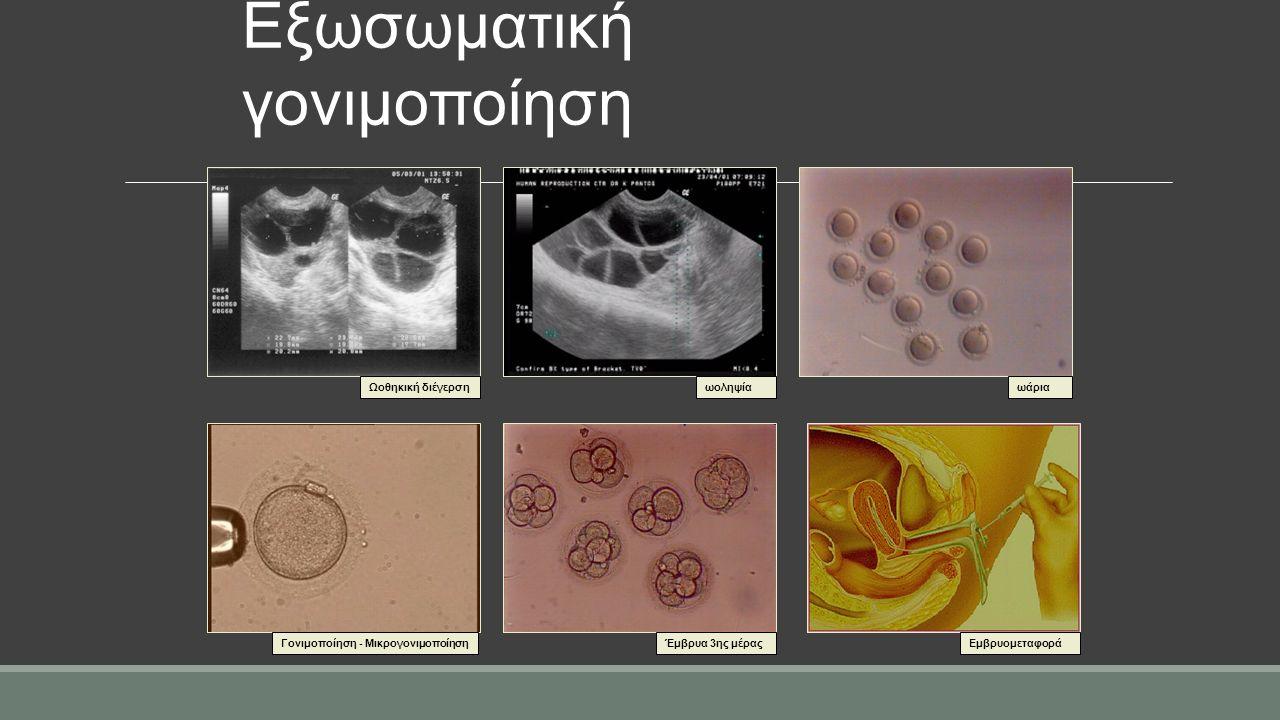 Έμβρυα 3ης μέρας ωάρια Eμβρυομεταφορά Ωοθηκική διέγερσηωοληψία Γονιμοποίηση - Μικρογονιμοποίηση