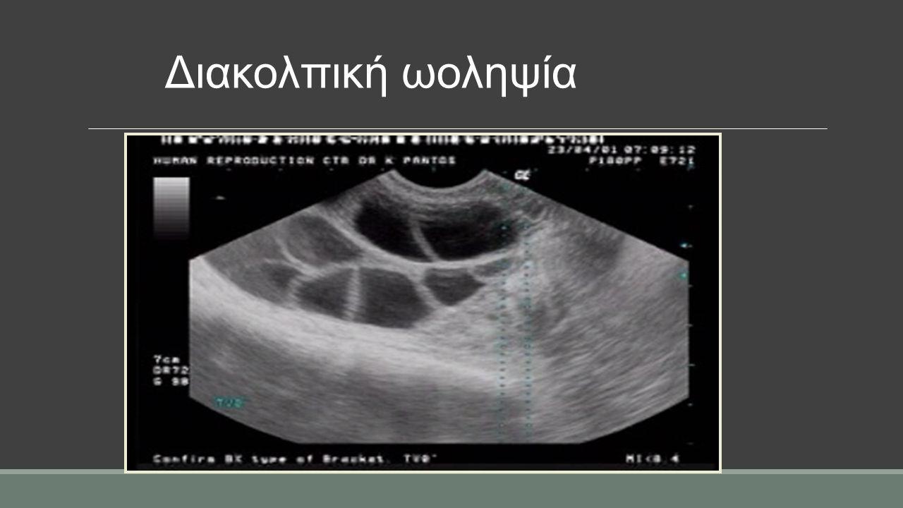 Διακολπική ωοληψία