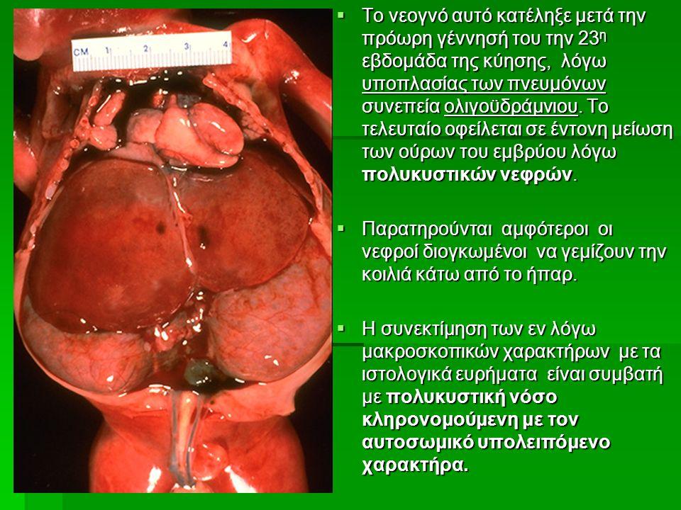  Το νεογνό αυτό κατέληξε μετά την πρόωρη γέννησή του την 23 η εβδομάδα της κύησης, λόγω υποπλασίας των πνευμόνων συνεπεία ολιγοϋδράμνιου.