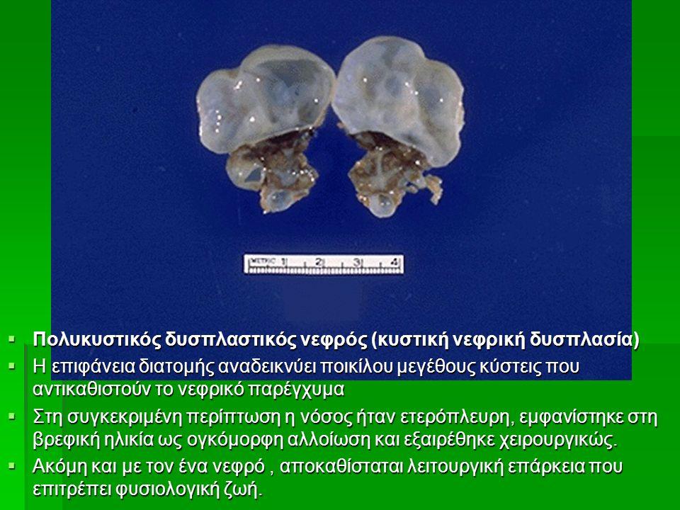  Πολυκυστικός δυσπλαστικός νεφρός (κυστική νεφρική δυσπλασία)  Η επιφάνεια διατομής αναδεικνύει ποικίλου μεγέθους κύστεις που αντικαθιστούν το νεφρικό παρέγχυμα  Στη συγκεκριμένη περίπτωση η νόσος ήταν ετερόπλευρη, εμφανίστηκε στη βρεφική ηλικία ως ογκόμορφη αλλοίωση και εξαιρέθηκε χειρουργικώς.