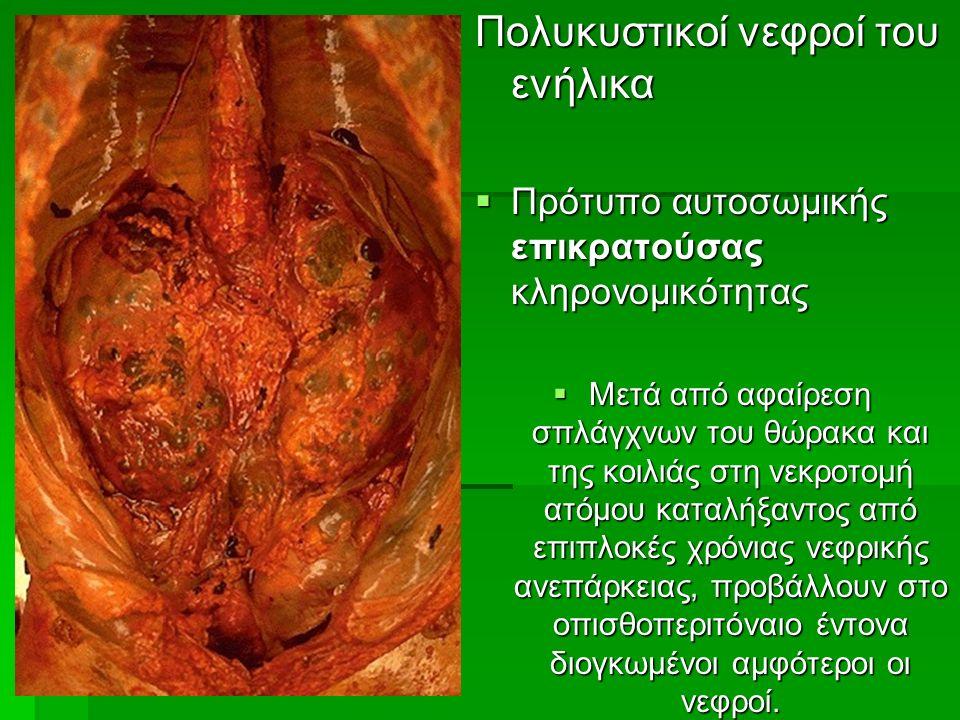 Πολυκυστικοί νεφροί του ενήλικα  Πρότυπο αυτοσωμικής επικρατούσας κληρονομικότητας  Μετά από αφαίρεση σπλάγχνων του θώρακα και της κοιλιάς στη νεκροτομή ατόμου καταλήξαντος από επιπλοκές χρόνιας νεφρικής ανεπάρκειας, προβάλλουν στο οπισθοπεριτόναιο έντονα διογκωμένοι αμφότεροι οι νεφροί.