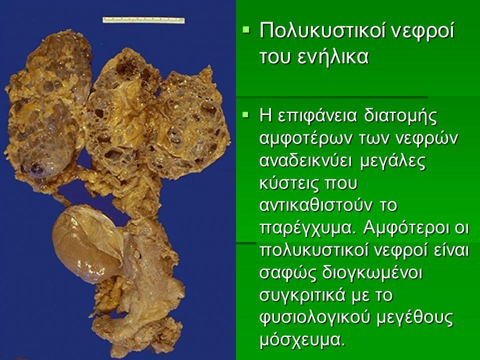  Πολυκυστικοί νεφροί του ενήλικα  Η επιφάνεια διατομής αμφοτέρων των νεφρών αναδεικνύει μεγάλες κύστεις που αντικαθιστούν το παρέγχυμα.