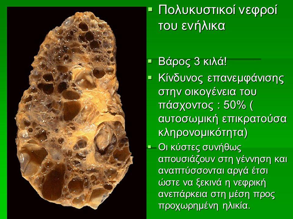  Πολυκυστικοί νεφροί του ενήλικα  Βάρος 3 κιλά.