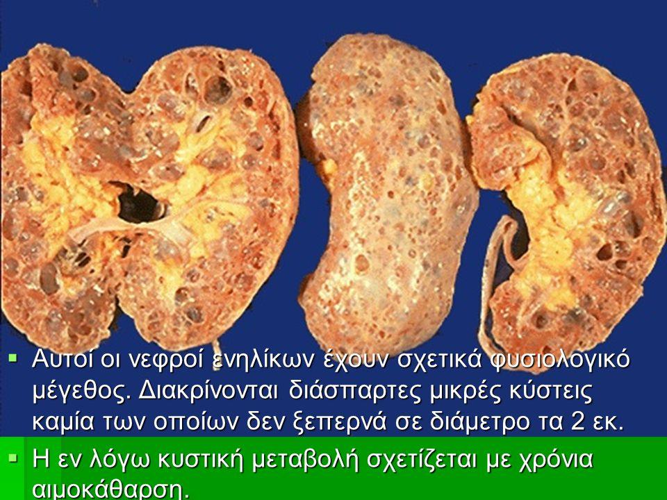  Αυτοί οι νεφροί ενηλίκων έχουν σχετικά φυσιολογικό μέγεθος.