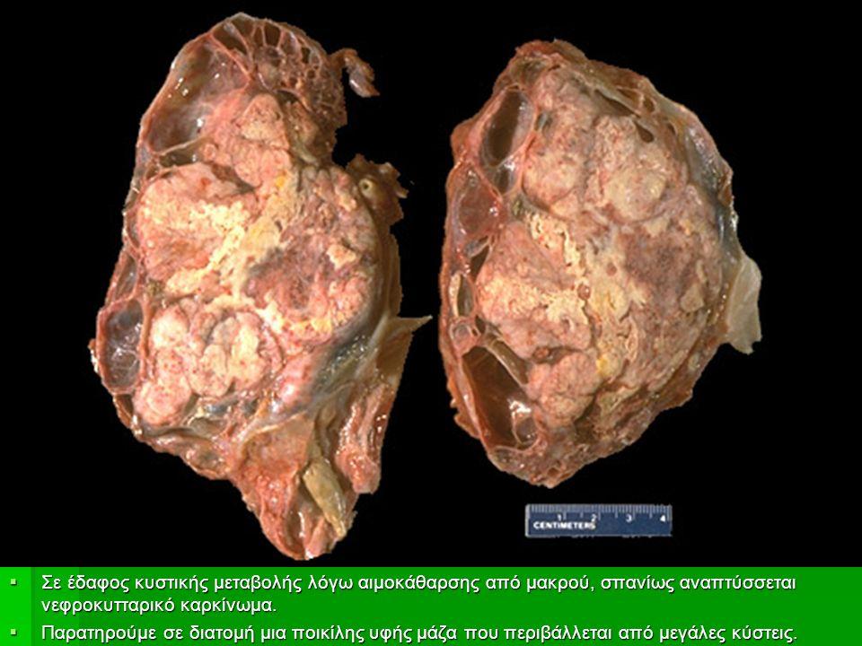  Σε έδαφος κυστικής μεταβολής λόγω αιμοκάθαρσης από μακρού, σπανίως αναπτύσσεται νεφροκυτταρικό καρκίνωμα.