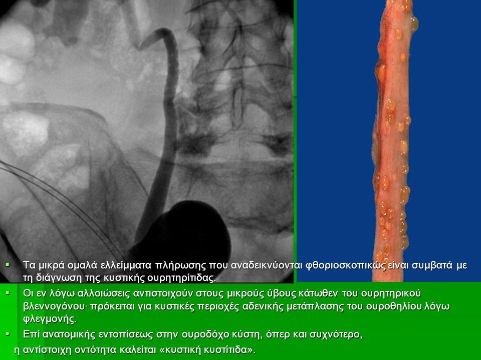  Τα μικρά ομαλά ελλείμματα πλήρωσης που αναδεικνύονται φθοριοσκοπικώς είναι συμβατά με τη διάγνωση της κυστικής ουρητηρίτιδας.