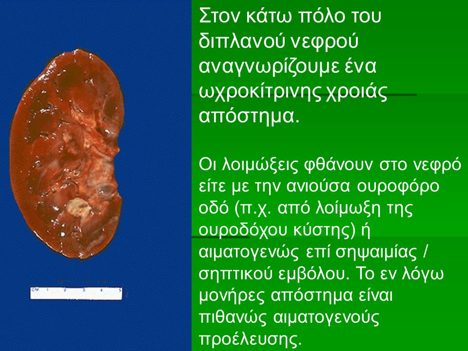 Στον κάτω πόλο του διπλανού νεφρού αναγνωρίζουμε ένα ωχροκίτρινης χροιάς απόστημα.
