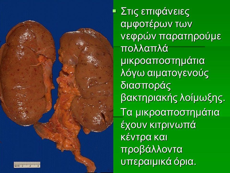  Στις επιφάνειες αμφοτέρων των νεφρών παρατηρούμε πολλαπλά μικροαποστημάτια λόγω αιματογενούς διασποράς βακτηριακής λοίμωξης.