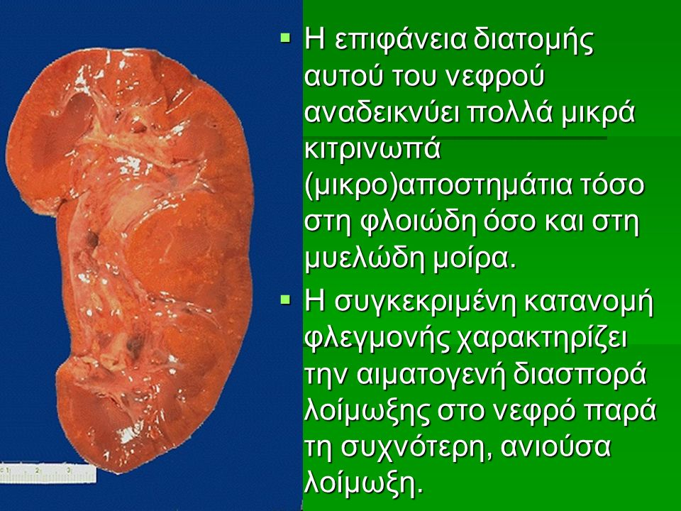  Η επιφάνεια διατομής αυτού του νεφρού αναδεικνύει πολλά μικρά κιτρινωπά (μικρο)αποστημάτια τόσο στη φλοιώδη όσο και στη μυελώδη μοίρα.