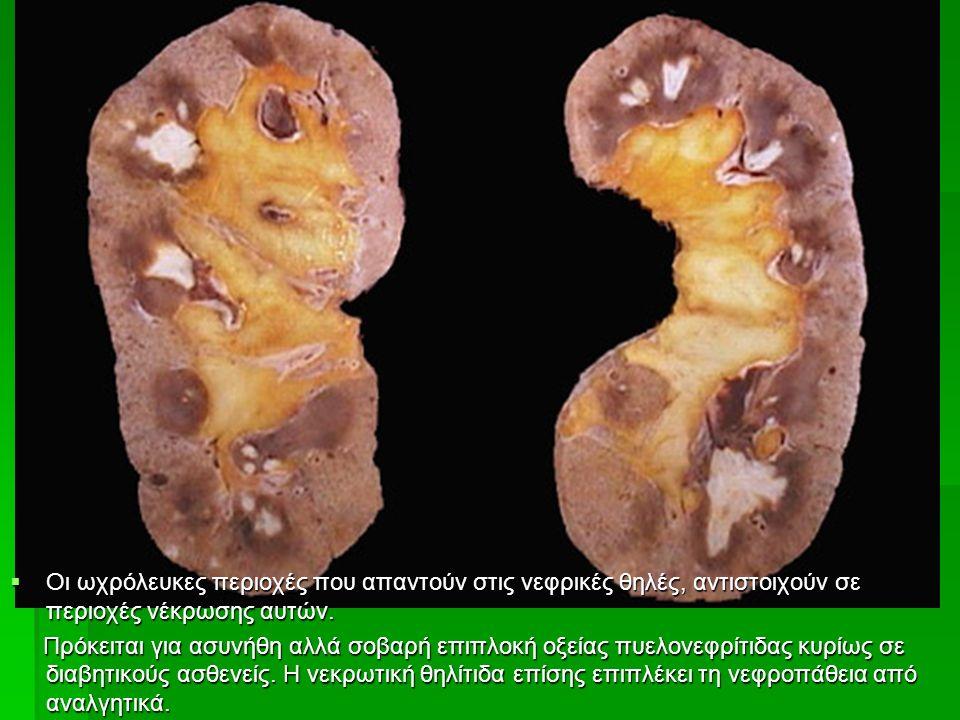  Οι ωχρόλευκες περιοχές που απαντούν στις νεφρικές θηλές, αντιστοιχούν σε περιοχές νέκρωσης αυτών.
