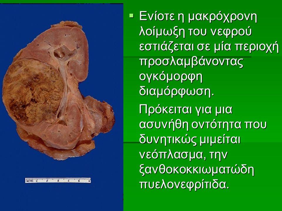  Ενίοτε η μακρόχρονη λοίμωξη του νεφρού εστιάζεται σε μία περιοχή προσλαμβάνοντας ογκόμορφη διαμόρφωση.