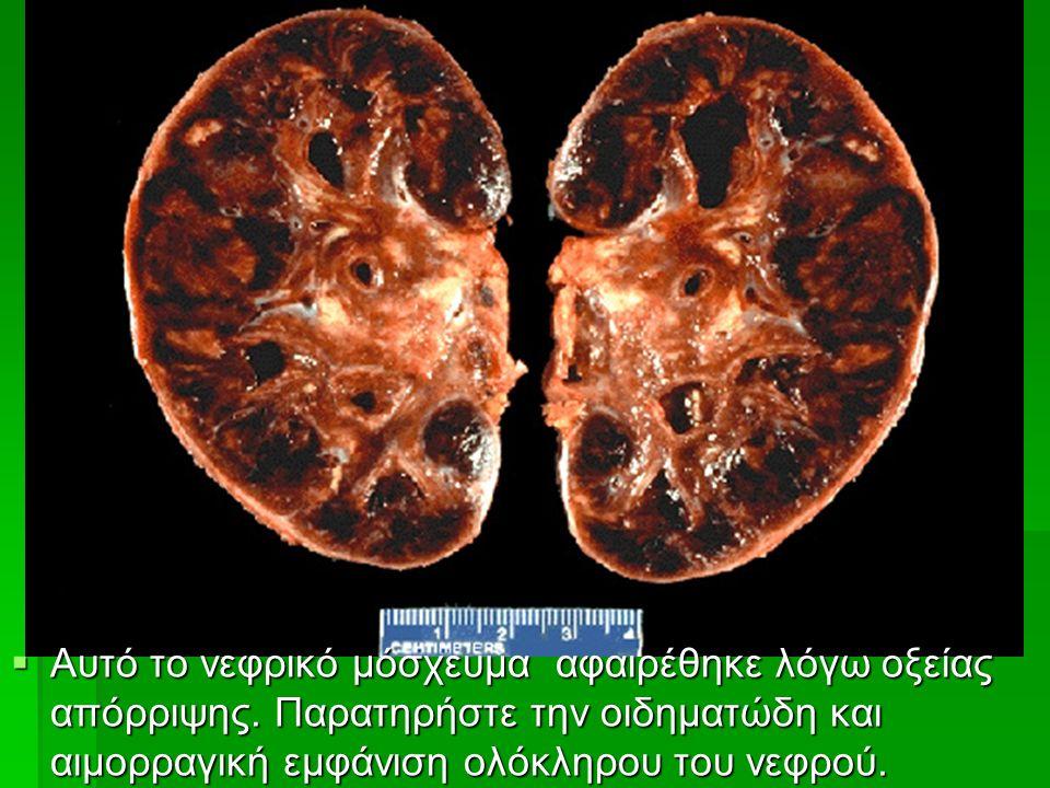  Αυτό το νεφρικό μόσχευμα αφαιρέθηκε λόγω οξείας απόρριψης.