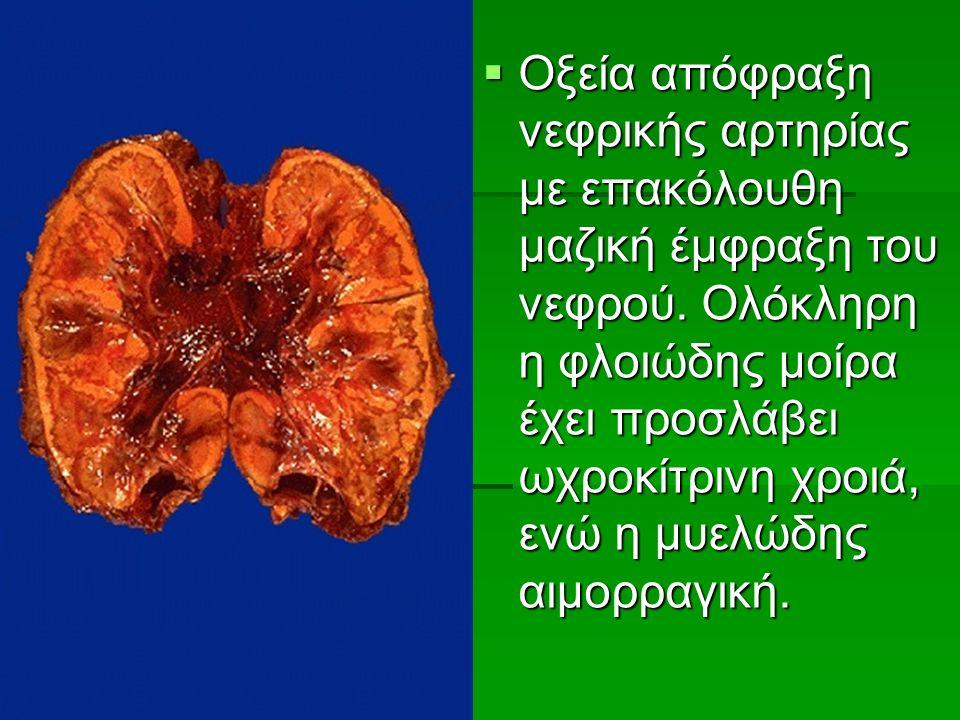  Οξεία απόφραξη νεφρικής αρτηρίας με επακόλουθη μαζική έμφραξη του νεφρού.